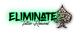 Eliminate Tattoo Removal