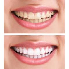 Abbeywood Dental